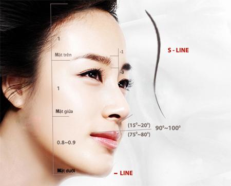 Nâng mũi S Line đẹp chuẩn Hàn