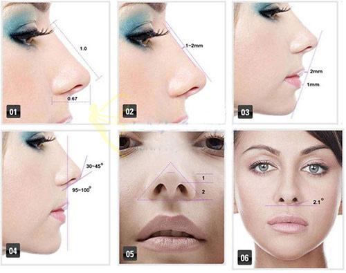 sửa mũi hỏng sau nâng 2