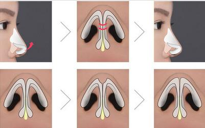 sửa mũi sau nâng4