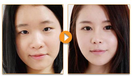 Cách làm sống mũi cao tự nhiên, tạo dáng mũi đẹp hoàn hảo
