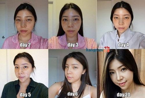 Phẫu thuật nâng mũi s line 3d được bao lâu