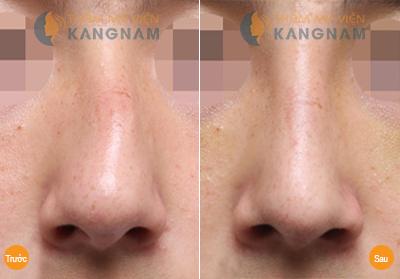 Mũi vẹo sang 1 bên khắc phục bằng cách nào?
