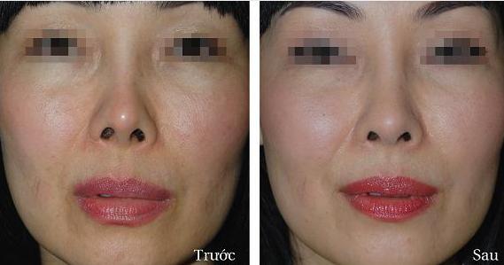 Có nên phẫu thuật chỉnh hình vẹo vách ngăn mũi hay không?3