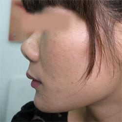 Mũi hếch là gì? Phải làm sao để chỉnh sửa mũi hếch tốt nhất?