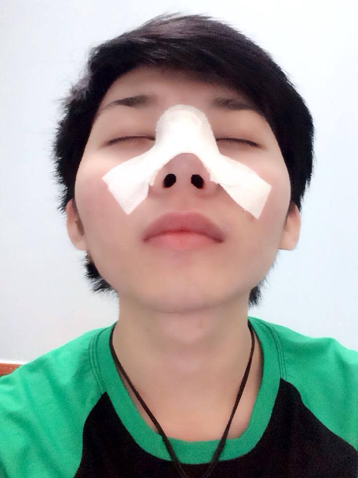 """""""Nâng mũi giúp tôi tự tin hơn với ngoại hình của mình"""" – Lê Quang Lộc2"""