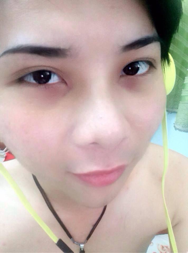 """""""Nâng mũi giúp tôi tự tin hơn với ngoại hình của mình"""" – Lê Quang Lộc3"""