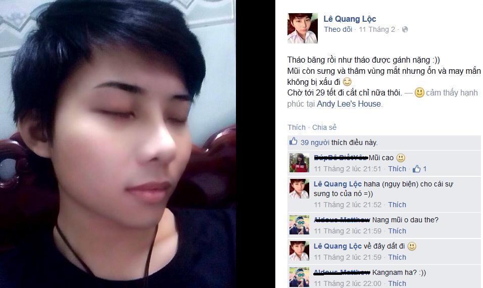 """""""Nâng mũi giúp tôi tự tin hơn với ngoại hình của mình"""" – Lê Quang Lộc4"""
