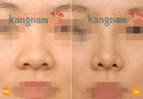 Thu gọn cánh mũi nội soi giá bao nhiêu 2