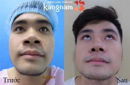 Thu gọn cánh mũi nội soi giá bao nhiêu 3