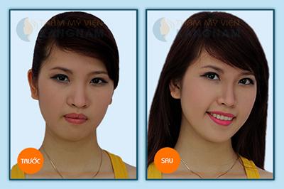 Nên chăm sóc mũi như thế nào sau khi thu gọn cánh mũi nội soi?4