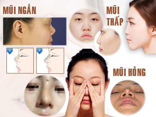 Phẫu thuật nâng mũi S Line 3D có đau không