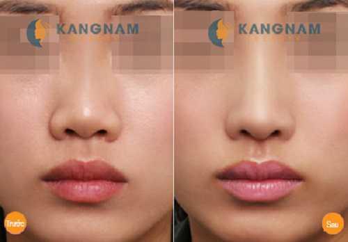 Tại Kangnamnâng mũi có đau không 1