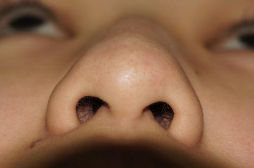 Thu nhỏ đầu mũi sau bao lâu mới hết sưng? 1