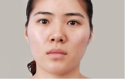 Mũi tẹt và đầu mũi hếch phải làm sao để khắc phục?