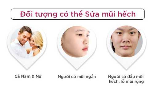 Sửa mũi ngắn hếch 1