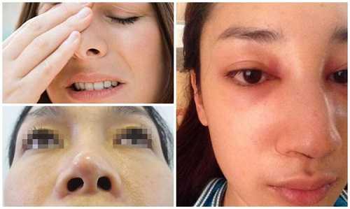 Nâng mũi có ảnh hưởng đến sức khỏe không