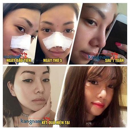phẫu thuật nâng mũi được bao lâu5
