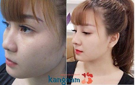phẫu thuật nâng mũi được bao lâu1