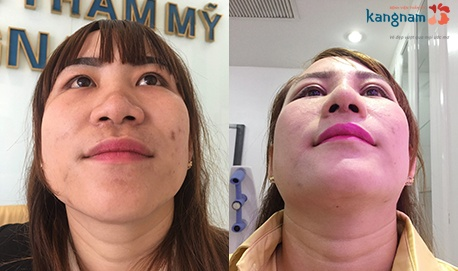 thu gọn cánh mũi không phẫu thuật 3