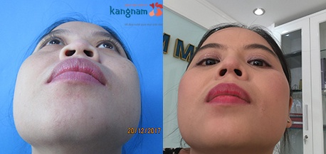 thu gọn cánh mũi không phẫu thuật 4