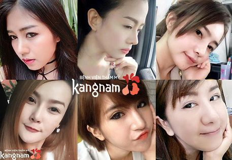 Phẫu thuật nâng mũi tại bệnh viện thẩm mỹ Kangnam có tốt không