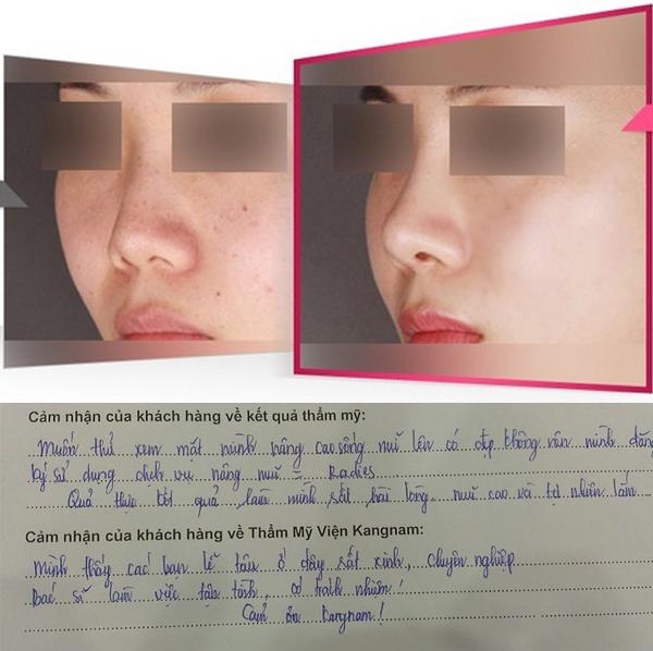 Kết quả nâng mũi không phẫu thuật tại BVTM Kangnam