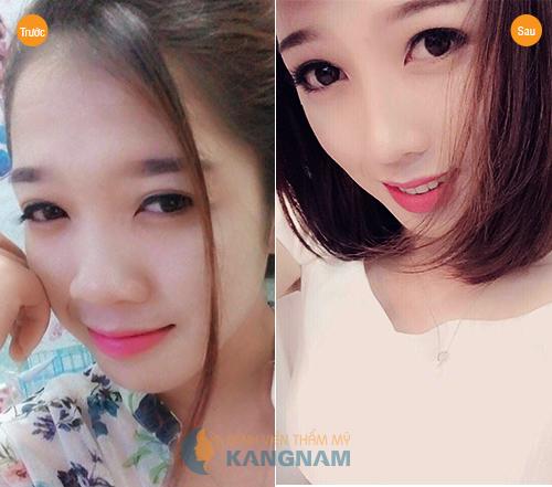 Nâng mũi tại Bệnh viện Thẩm mỹ Kangnam ở TP Hồ Chí Minh có tốt không? 2Nâng mũi tại Bệnh viện Thẩm mỹ Kangnam ở TP Hồ Chí Minh có tốt không? 2Nâng mũi tại Bệnh viện Thẩm mỹ Kangnam ở TP Hồ Chí Minh có tốt không? 2