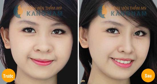 thu nhỏ cánh mũi tại Kangnam 2