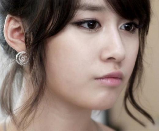 Nâng mũi bao lâu thì đẹp và ổn định bình thường? 1