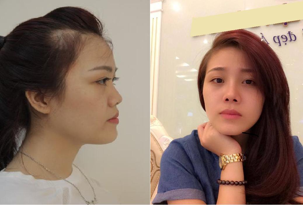 Nâng mũi bao lâu thì đẹp và ổn định bình thường? 2