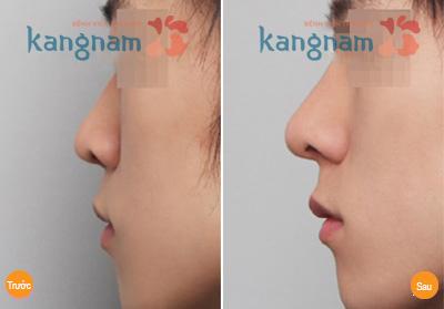 Nâng mũi không phẫu thuật hết bao nhiêu tiền