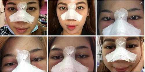 Sửa mũi có đau không có nguy hiểm không 4
