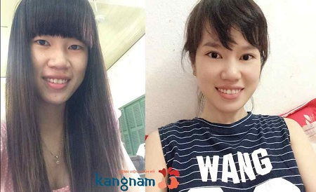 Khách hàng Kangnam tư vấn thu gọn cánh mũi có đau không?