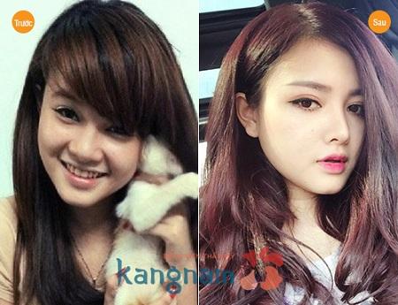 Khách hàng Kangnam giải đáp thu gọn cánh mũi có đau không?
