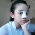 Choáng trước những hình ảnh sau nâng mũi của Hotgirl Việt