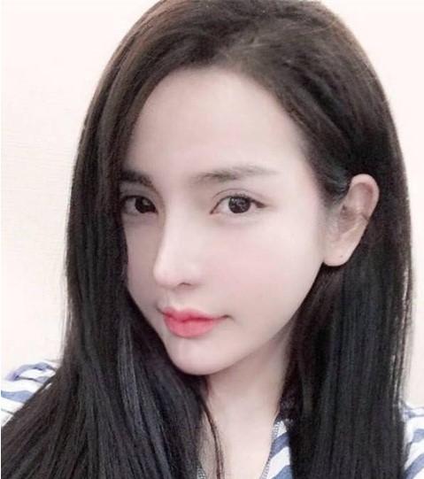 hình ảnh sau nâng mũi của Hotgirl Việt 2