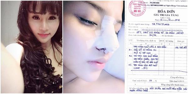 Hình ảnh sau nâng mũi của hotgirl Việt 11