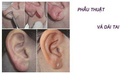 Lấy sụn tai nâng mũi