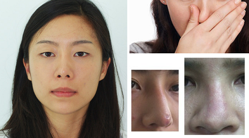 Chuyên khoa thẩm mỹ mũi tại Kangnam giúp chỉnh sửa mọi khuyết điểm của mũi