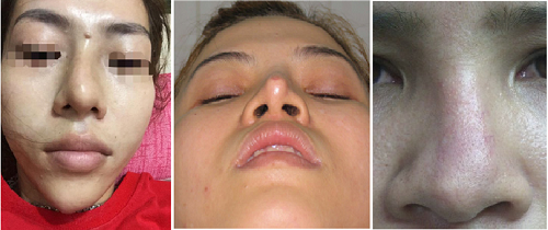 Những dấu hiệu cho thấy mũi hỏng sau nâng
