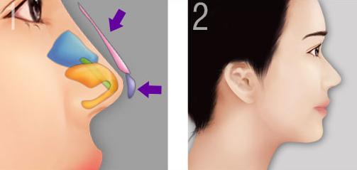Có nên phẫu thuật nâng mũi bọc sụn không?