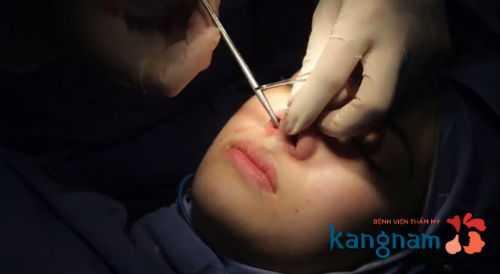 Thu gọn cánh mũi nội soi là gì 4