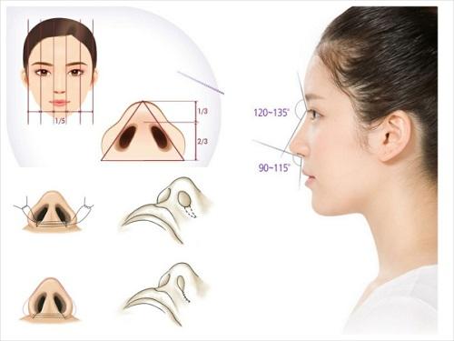 Thu gọn cánh mũi nội soi là gì?