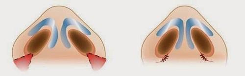 Thu gọn cánh mũi nội soi là gì 1