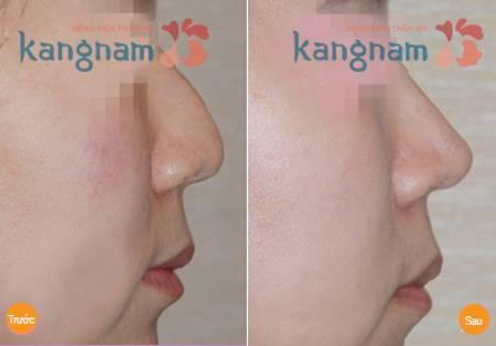 Làm thế nào để khắc phục mũi gồ hiệu quả?