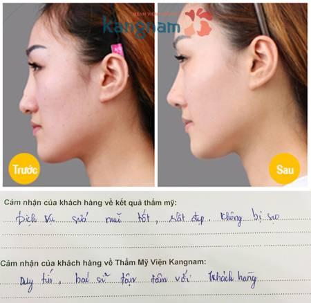 Mũi gồ phải làm sao để khắc phục?