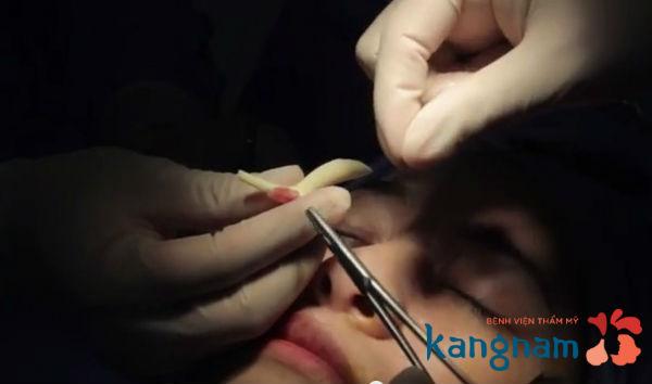 Sửa mũi gồ hiệu quả bằng nâng mũi bọc sụn