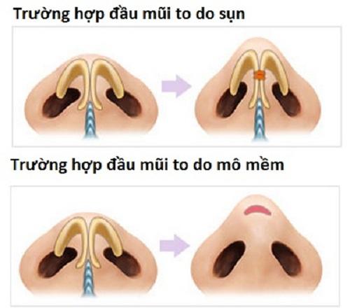 mui-lan-la-mui-nhu-the-nao 3