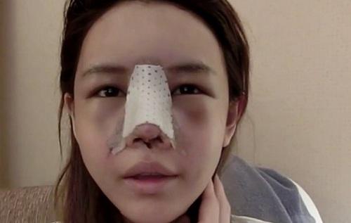Phẫu thuật nâng mũi có bị biến chứng không