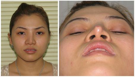Một số biến chứng có thể gặp khi nâng mũi